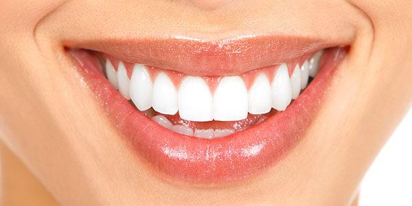 teeth whitening norco