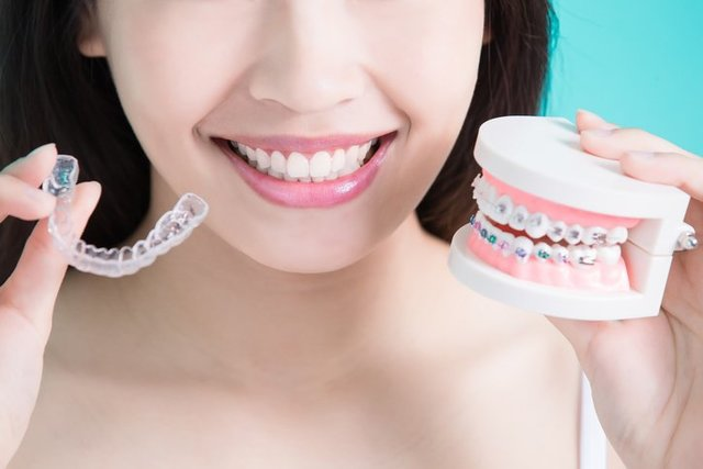 Here's What to Expect When Wearing Braces